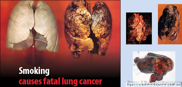 lung disease Os Smoking Challenge Update